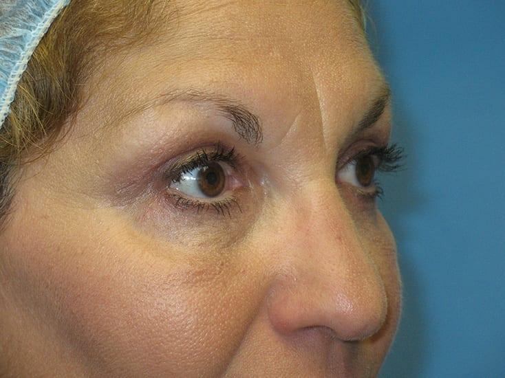 Eyelid Surgery Munster Patient 4.1