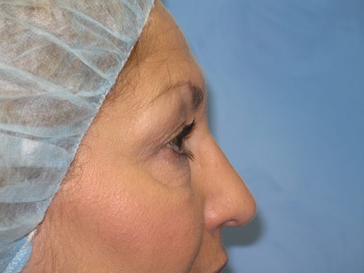 Eyelid Surgery Munster Patient 4