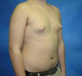 Gynecomastia Munster Patient 1