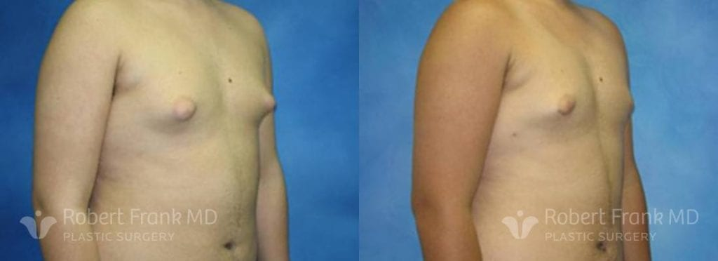 Gynecomastia Munster Patient 1-1