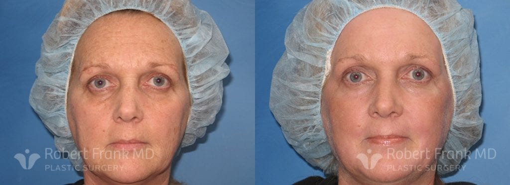 Laser resurfacing Munster Patient 1-1