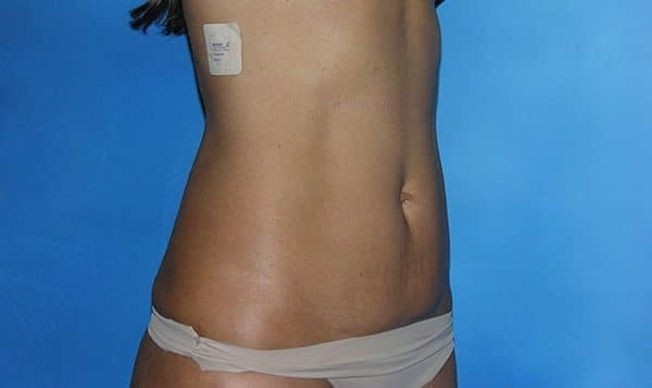 Liposuction Hobart Patient 1.1
