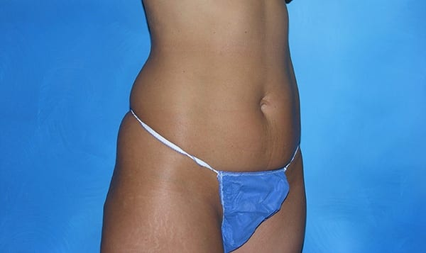 Liposuction Hobart Patient 1