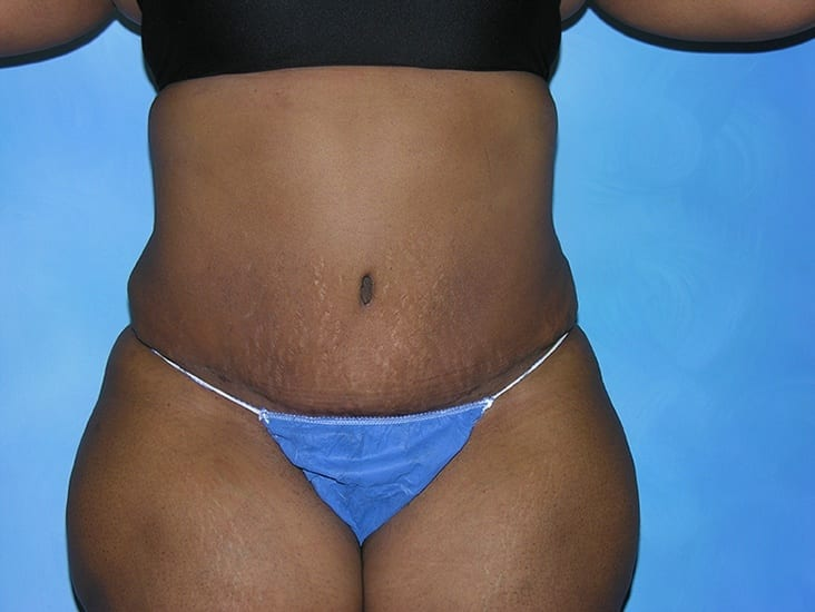 Liposuction Hobart Patient 2.1