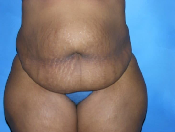 Liposuction Hobart Patient 2