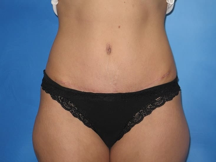 Liposuction Hobart Patient 5.1