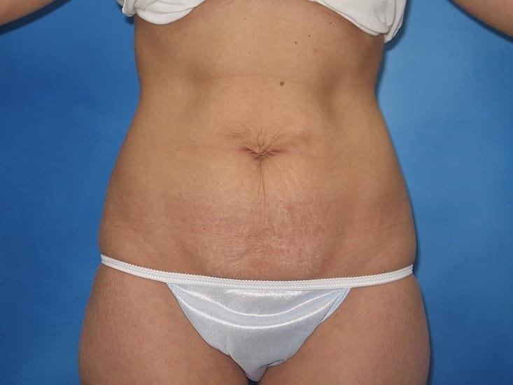 Liposuction Hobart Patient 5