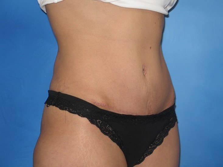 Liposuction Hobart Patient 6.1