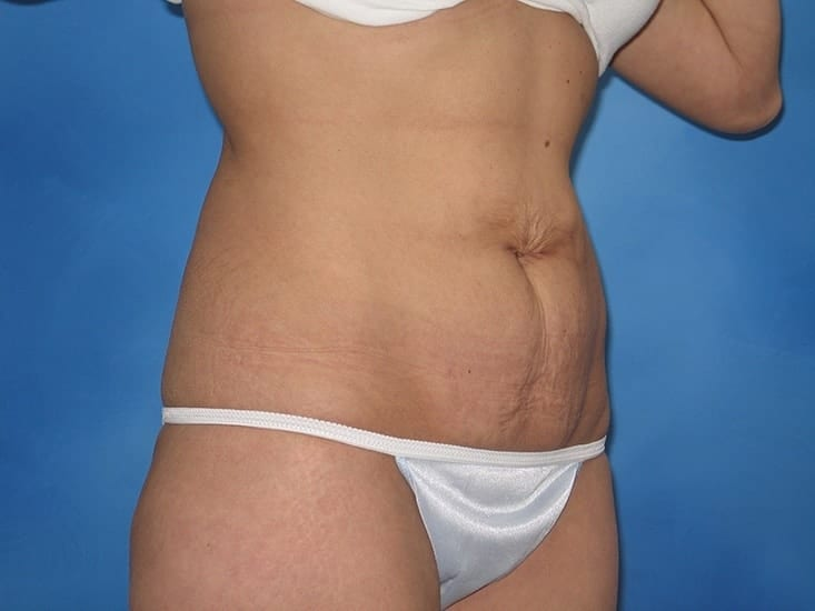 Liposuction Hobart Patient 6