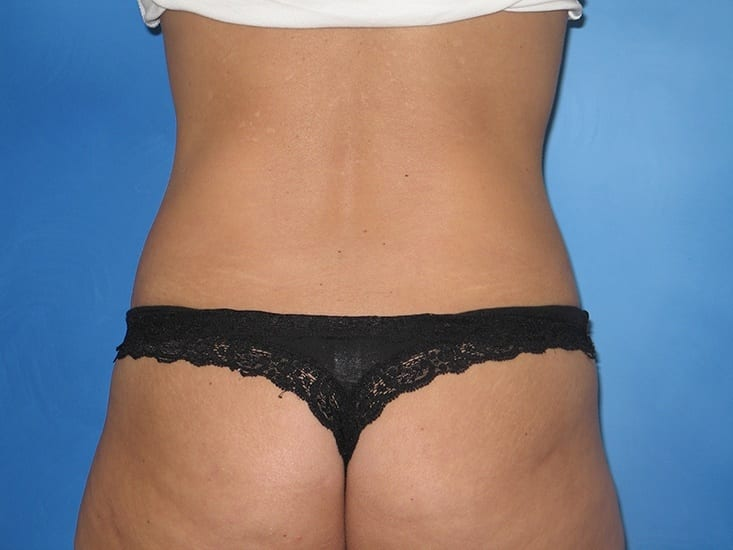 Liposuction Hobart Patient 7.1
