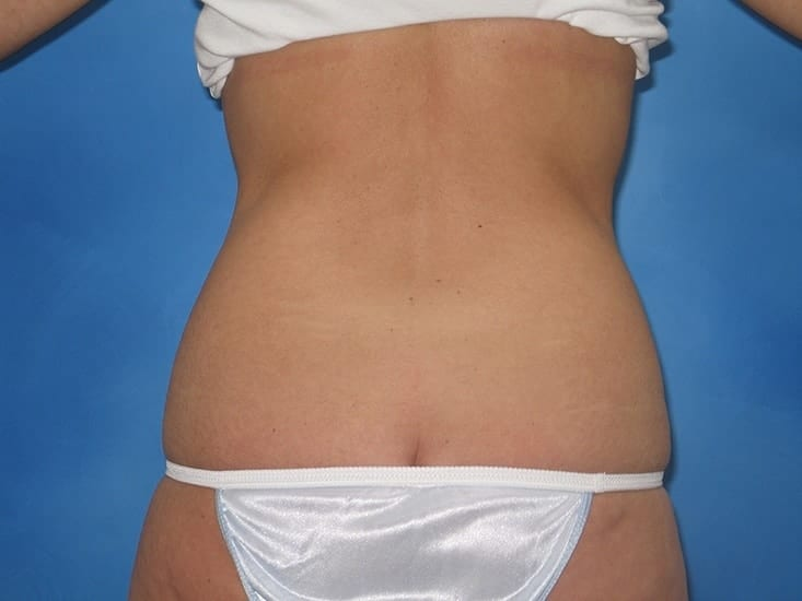 Liposuction Hobart Patient 7