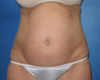 Liposuction Munster Patient 1