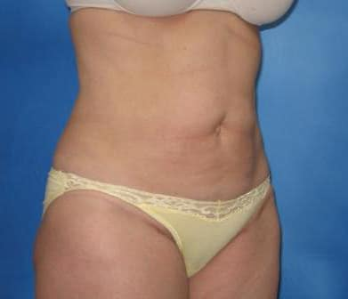 Liposuction Munster Patient 2.1