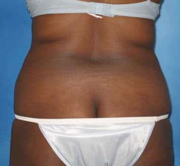 Liposuction Munster Patient 4