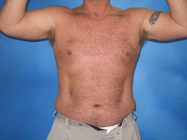 Liposuction Munster Patient 5.1.jpg
