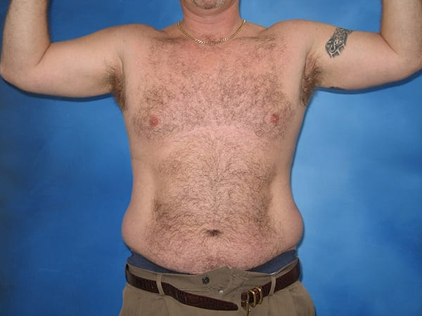 Liposuction Munster Patient 5