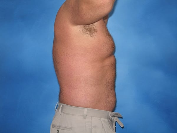 Liposuction Munster Patient 6.1