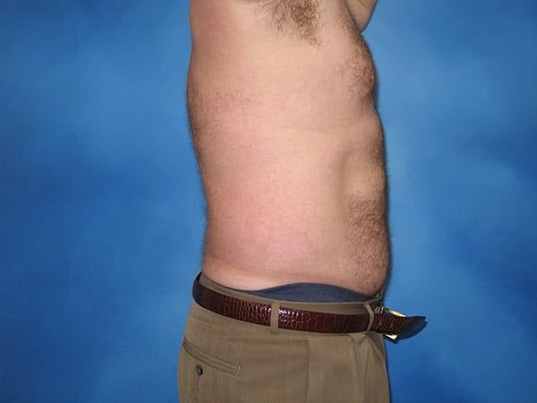 Liposuction Munster Patient 6.jpg