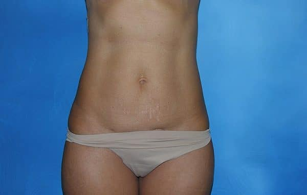 Liposuction Munster Patient 8.1