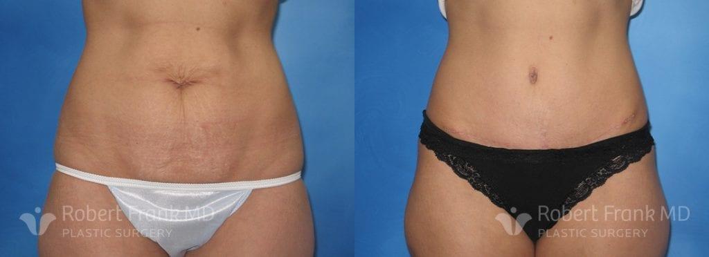 Liposuction Hobart Patient 6-1