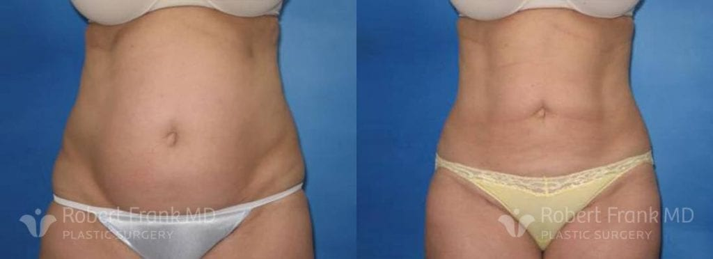 Liposuction Munster Patient 1-1
