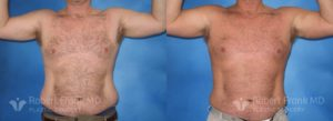 Liposuction Munster Patient 3-1