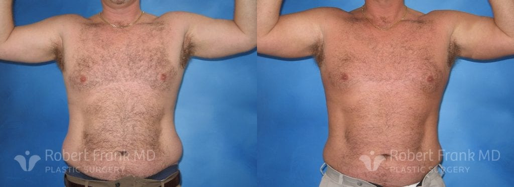 Liposuction Munster Patient 3-1