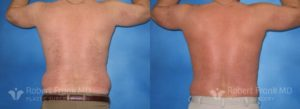 Liposuction Munster Patient 3-3