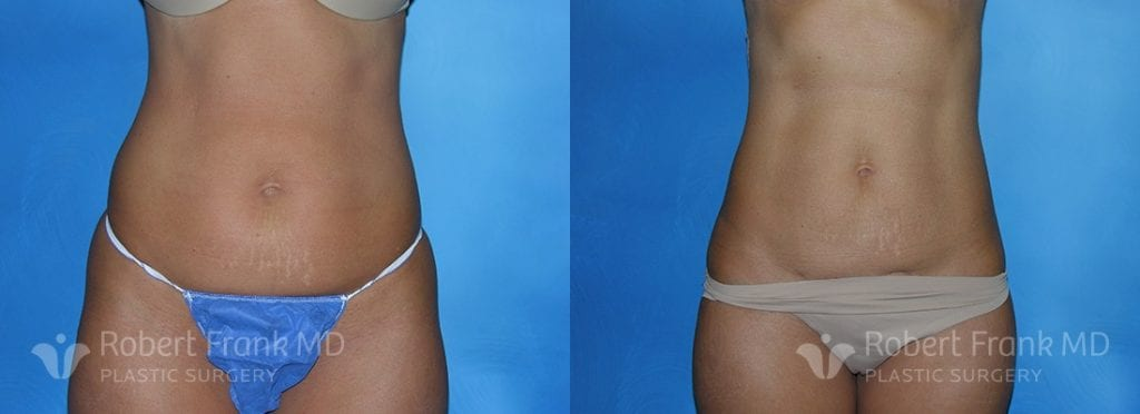 Liposuction Munster Patient 4-1