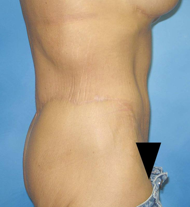 Post Bariatric Reconstruction Munster Patient 1.1
