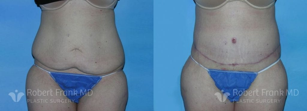 Post bariatric reconstruction Hobart Patient 3-1
