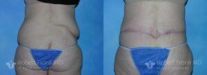 Post bariatric reconstruction Hobart Patient 3-2