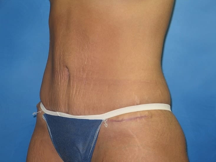 Tummy Tuck Hobart Patient 1.1