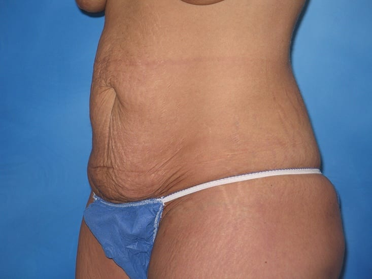 Tummy Tuck Hobart Patient 1