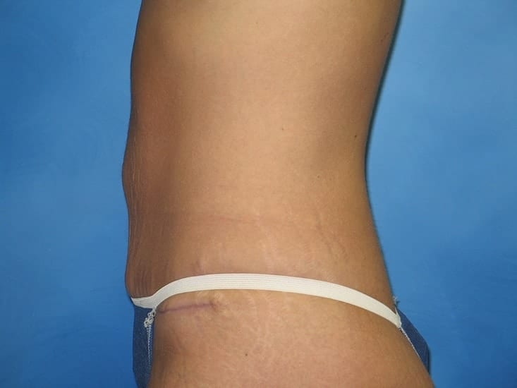 Tummy Tuck Hobart Patient 2.1