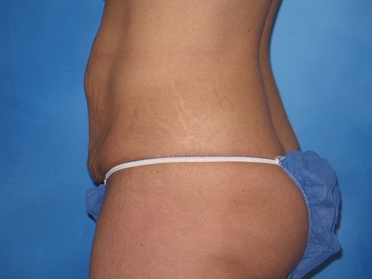Tummy Tuck Hobart Patient 2