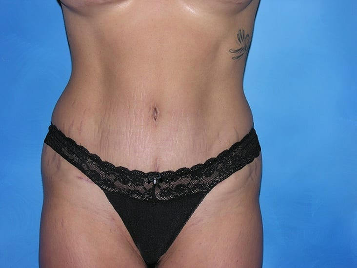 Tummy Tuck Hobart Patient 3.1