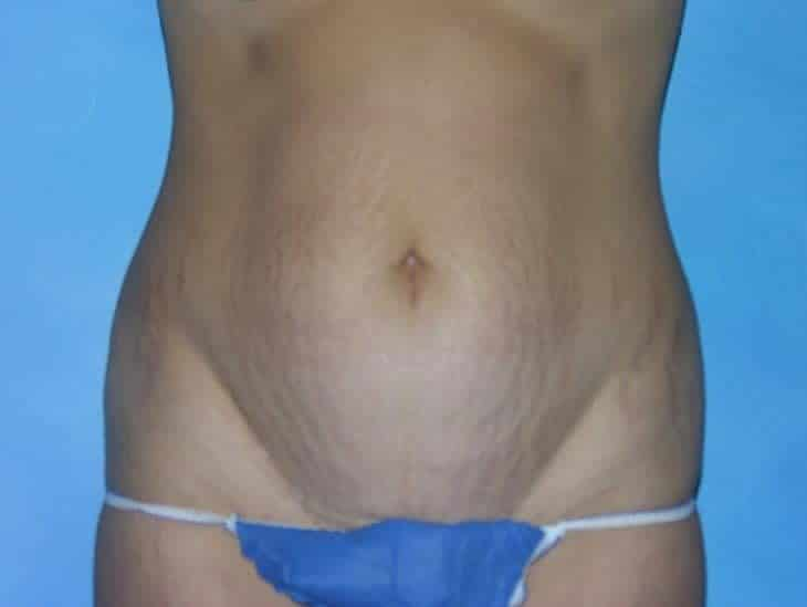 Tummy Tuck Hobart Patient 3