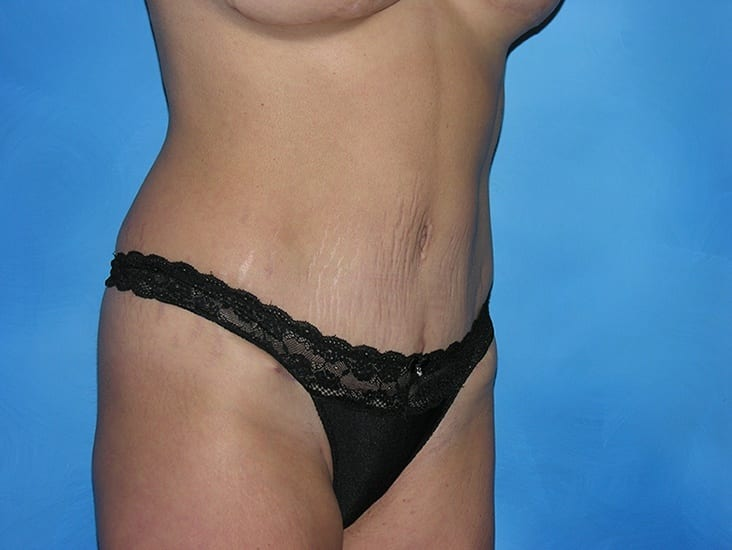 Tummy Tuck Hobart Patient 4.1