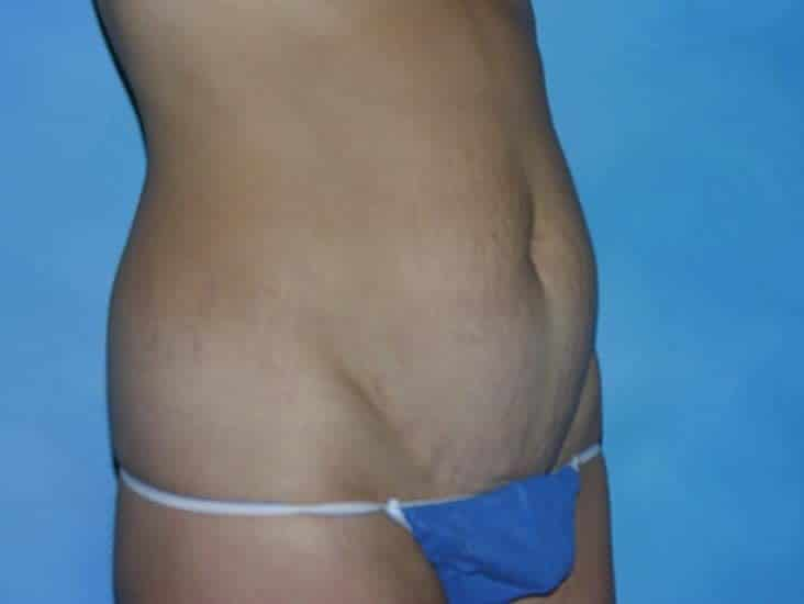 Tummy Tuck Hobart Patient 4