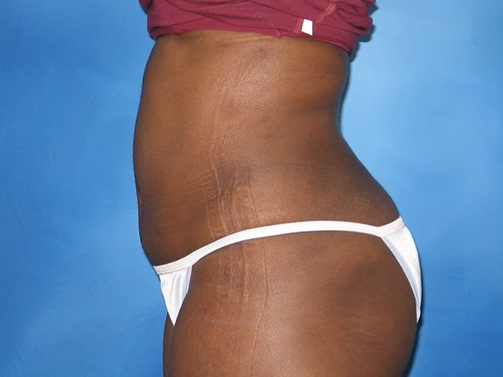 Tummy Tuck Hobart Patient 7.1