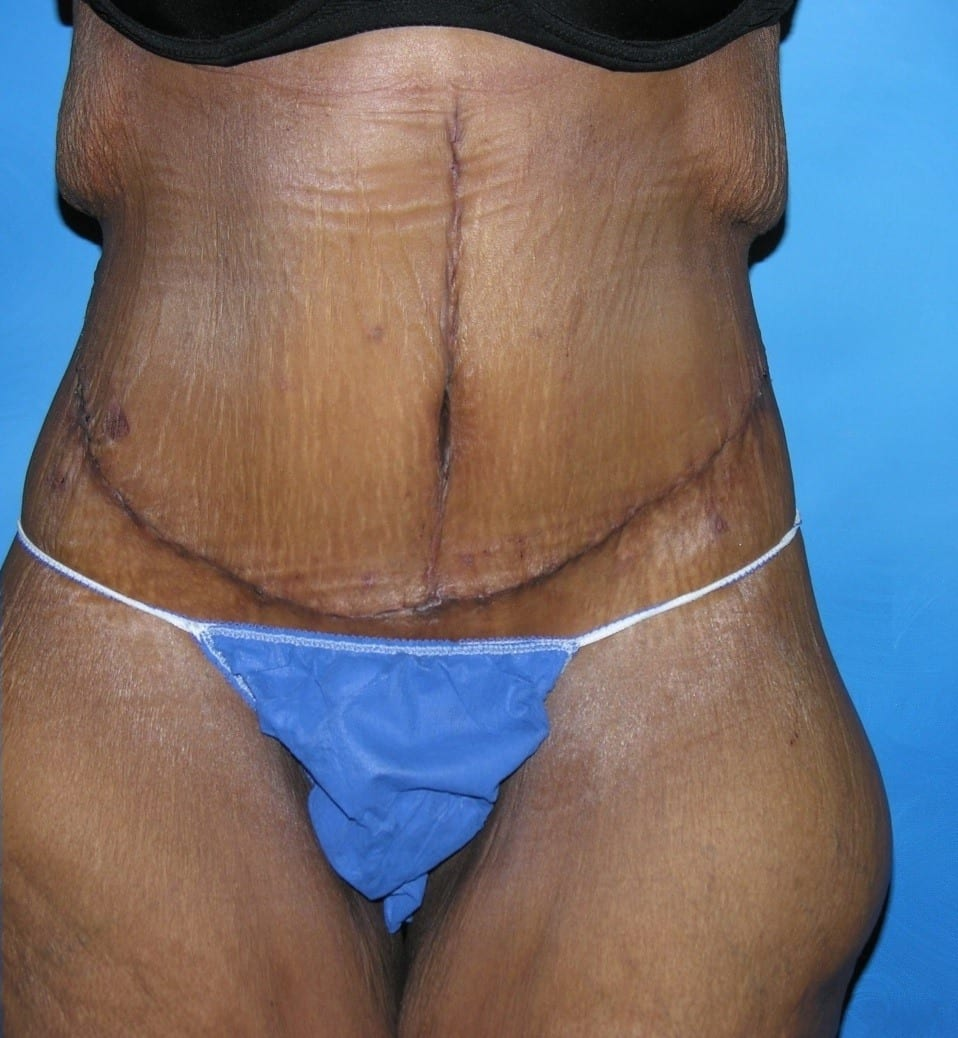 Tummy Tuck Lake County Patient 1.1