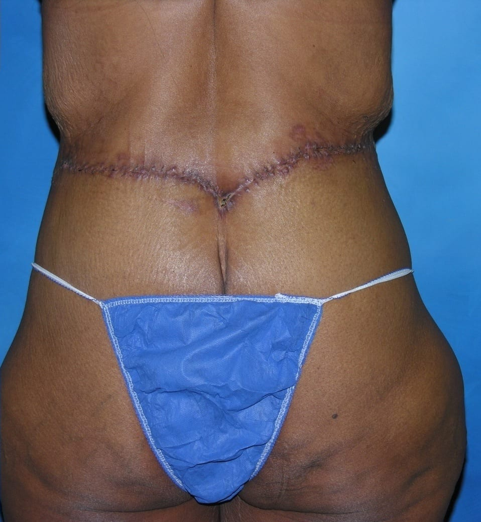Tummy Tuck Lake County Patient 2.1.
