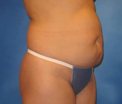 Tummy Tuck Munster Patient 1