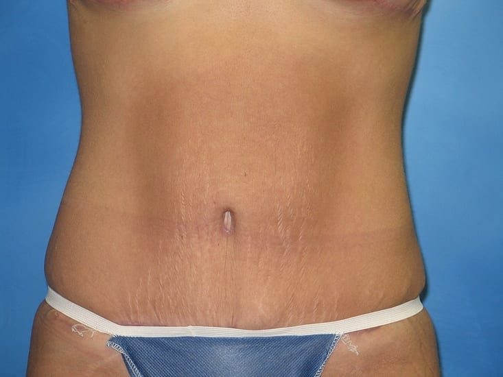 Tummy Tuck Munster Patient 10.1