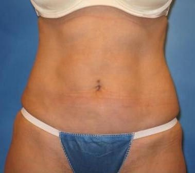Tummy Tuck Munster Patient 3.1