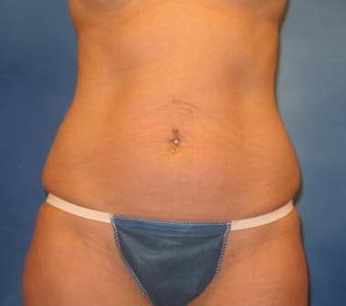 Tummy Tuck Munster Patient 3