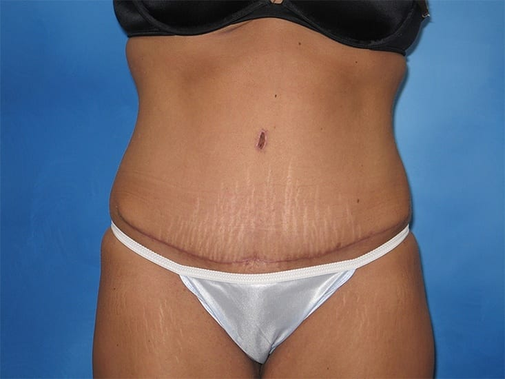 Tummy Tuck Munster Patient 4.1