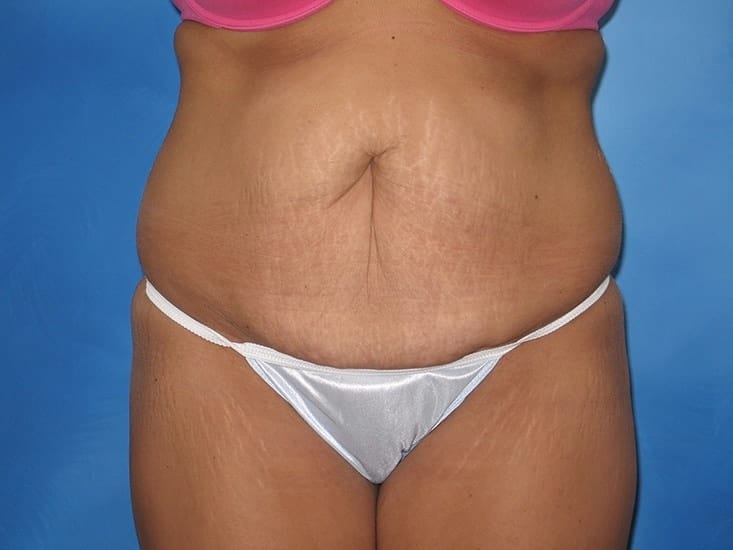 Tummy Tuck Munster Patient 4