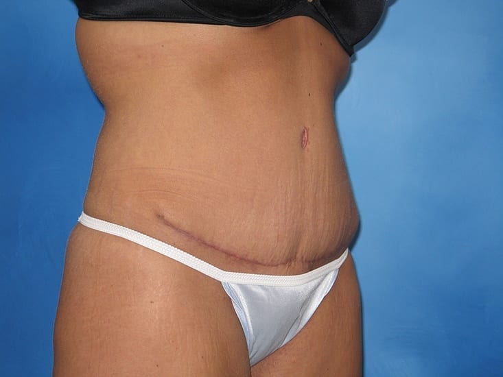 Tummy Tuck Munster Patient 5.1